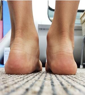 踵の骨が内側に回転してしまっている足